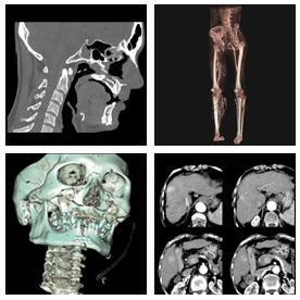CTのサンプル画像